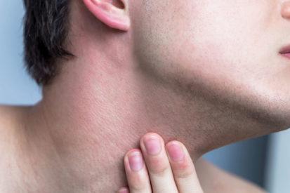 6 Things Men Can Do to Prevent Razor Burn